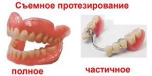 Какое протезирование зубов лучше – выбираем оптимальный вариант
