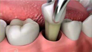 Этапы удаления зуба