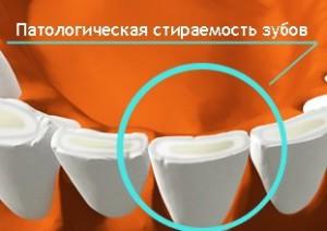 Патологическая стираемость зубов - причины и лечение