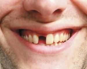 Особенности протезирования переднего зуба после удаления