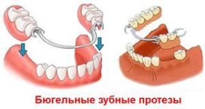 Особенности бюгельного и телескопического протезирования зубов