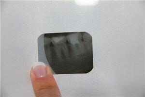 Лечение и профилактика зубной гранулемы