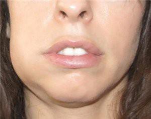 Воспаление надкостницы зуба: причины, лечение