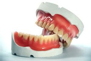 Протезирование или имплантация зубов - что лучше?