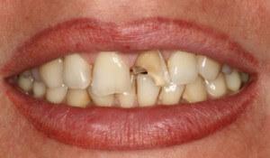 Необходимое лечение при переломе зуба