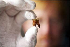 В каких случаях рекомендуется удаление зуба?