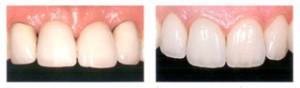 Распространенные ошибки протезирования зубов