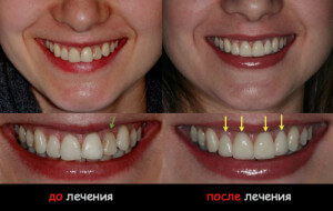 Особенности лечения передних зубов