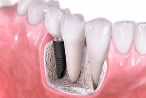 Экспресс-имплантация зубов: стоматология завтрашнего дня рядом с вами