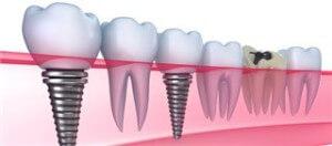 Имплантация зубов - виды и особенности