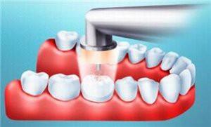 Методики и технологии лечения кариеса без сверления зуба
