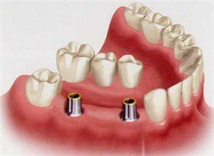 Все, что вы хотели знать об имплантации зубов