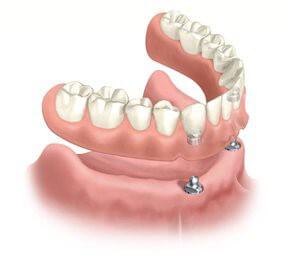 Что такое мини-имплантация зубов?