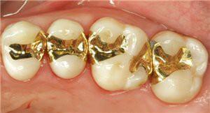 Протезирование зубов вкладками