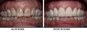 Лечение эмали зубов – основные методы