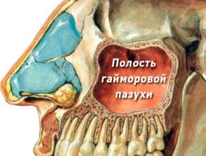 Перфорация гайморовой пазухи при удалении зуба: что нужно знать